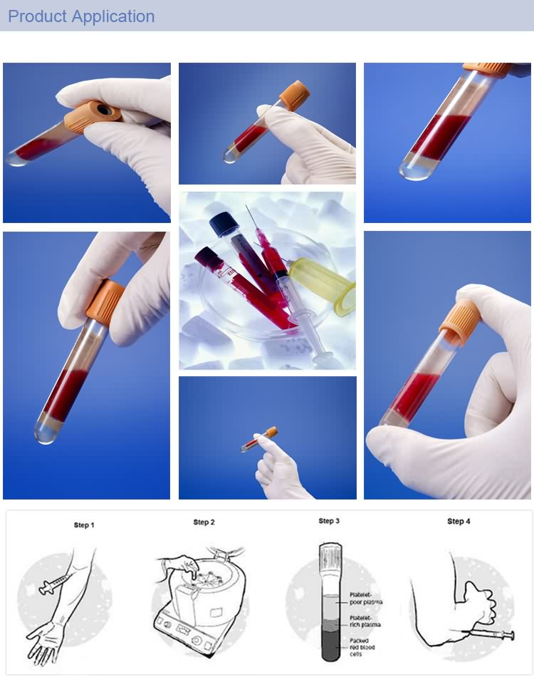 Grew Cap Medical Vacutainer Plastic Blood Collection Tube With Sodium Citrate