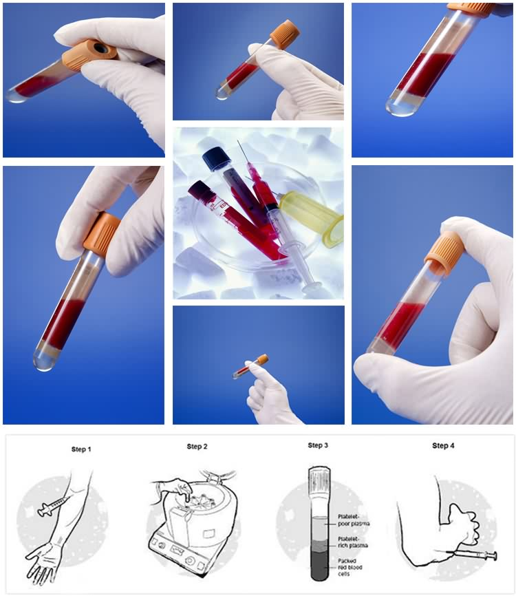 medical yellow top vacutainer non vacuum blood collection tube